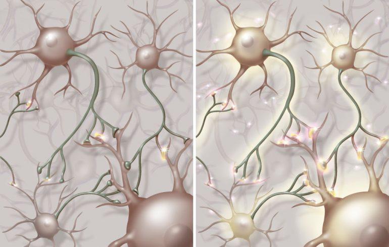 ameba-come-cerebros-infección-cerebral-neuronas