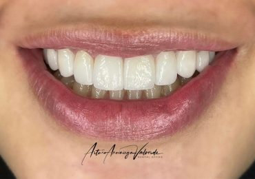 Secretos sonrisa blanca